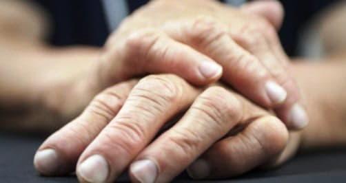 Ревматоїдний артрит народні методи лікування