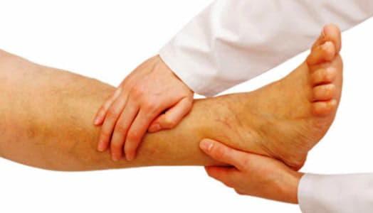 Лімфостаз нижніх кінцівок: лікування народними засобами