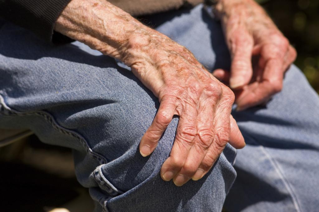 artroz likuvannia narodnimi zasobami v domashnih umovah