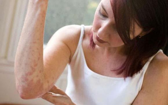 likuvannia alergii narodnimi zasobami v domashnih umovah