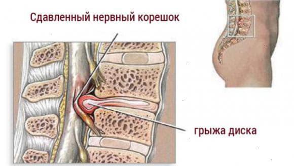 grija poperekovogo vitdilu hrebta simptomi i likuvannia