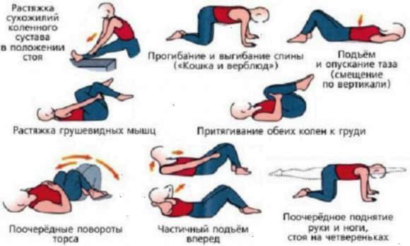 Лікувальна гімнастика при геморої