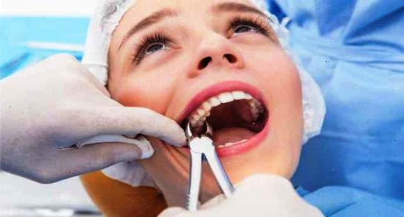 Що можна і не можна робити після видалення зуба?