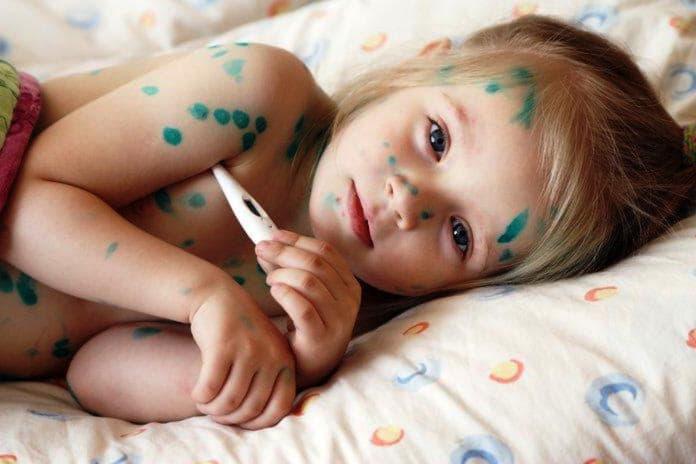 Лікування вітрянки у дітей