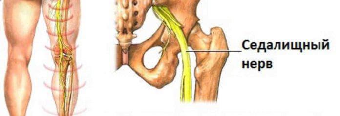Лікування запалення сідничого нерва