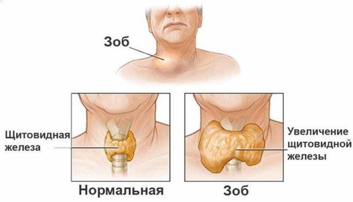 Лікування зобу щитовидної залози