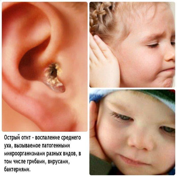 Що робити, якщо болить вухо?
