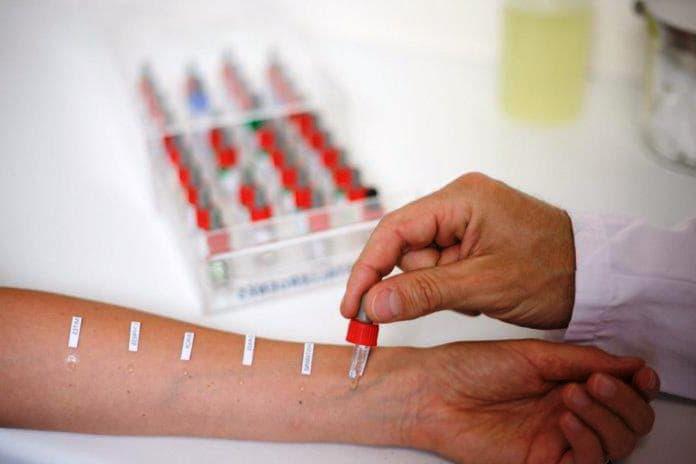 Симптоми і лікування атопічного дерматиту у дорослих